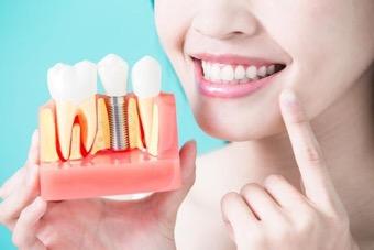 Conoce la mejor solución médica para tu salud dental
